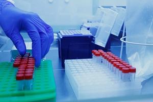 Δρ Φαρσαλινός: «Είναι ντροπή να ακούγονται αθλιότητες ως επιχειρήματα για να μην έρθουν στην Ελλάδα φάρμακα για τον κορωνοϊό»